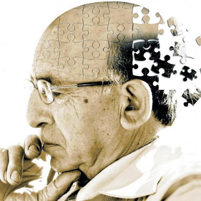 Лечение болезни Альцгеймера Leczenie Choroba Alzheimera